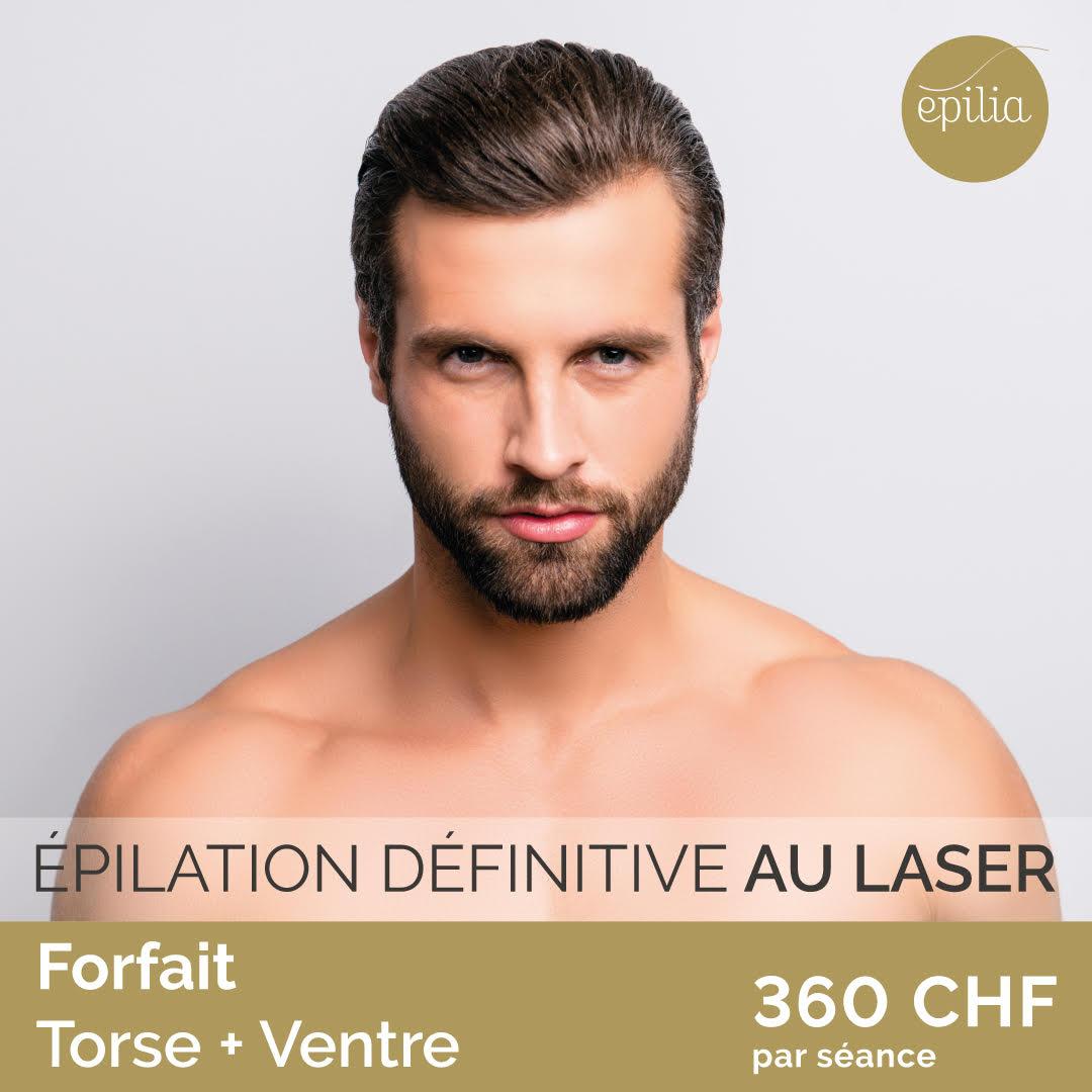 epilation laser definitive au laser  a bruxelles