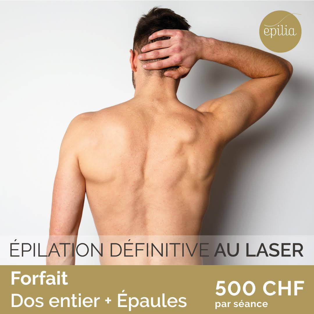 epilation laser definitive au laser  a bruxelles