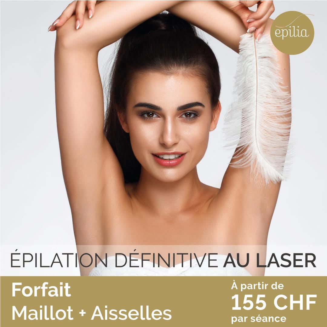 épilation laser definitive au laser femme genève