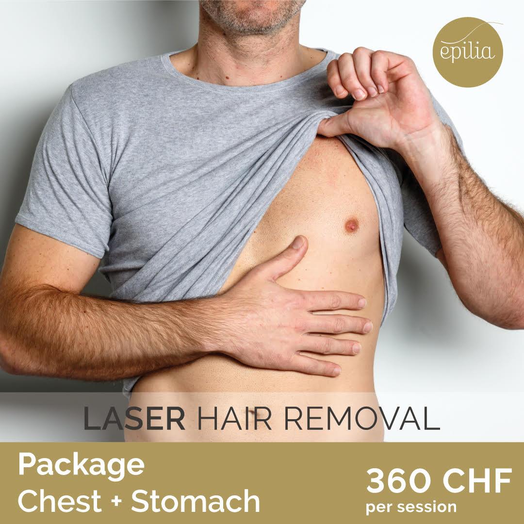 laser hair removal geneva